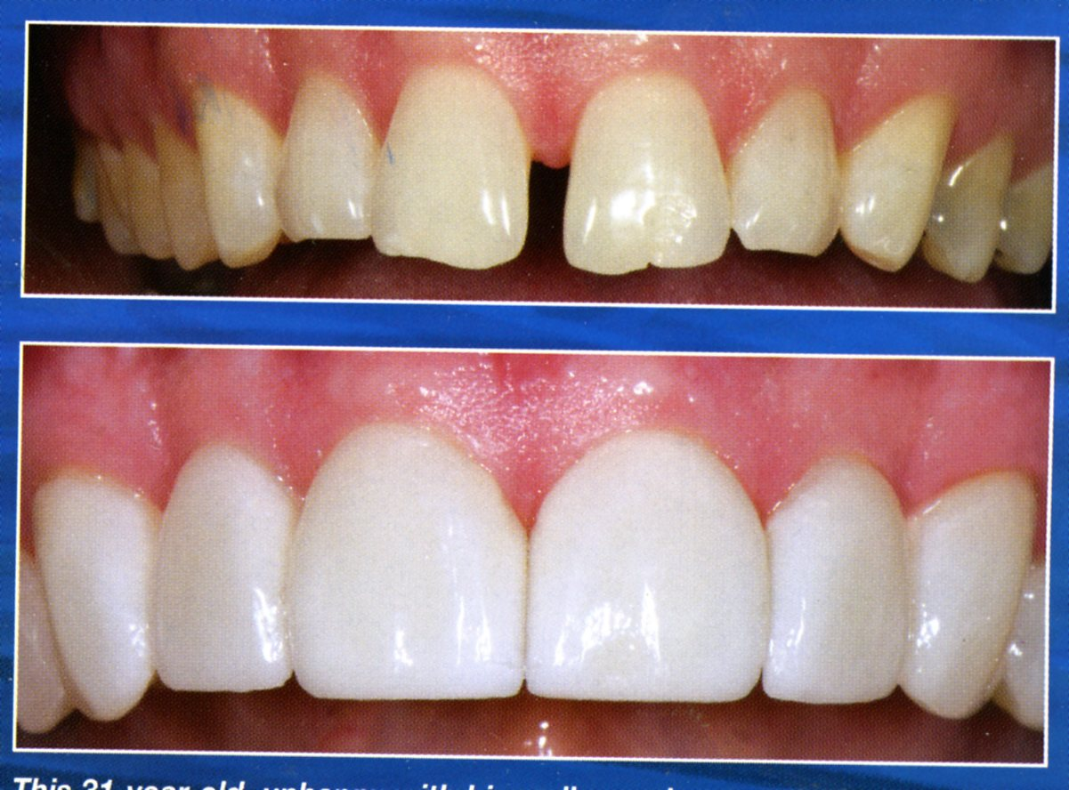 diastema-before-after