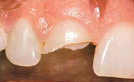 Restorative Dentistry Before
