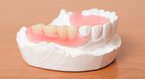 Lower Partial Denture