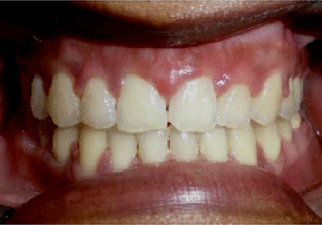 Orthodontics After